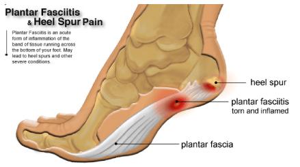 Adressing injuries – Plantar fasciitis
