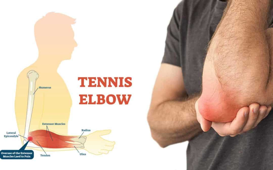 Tennis Elbow the causes & the treatment